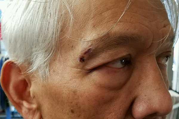Robaire G. Lizama says he was thrown to the ground by a Lewes, Del., police officer and sustained a brain injury during the incident. (Photo courtesy Lizama)