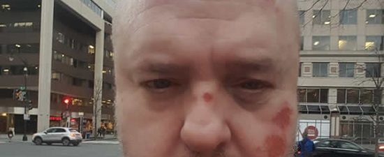 Trump supporters assault D.C. gay man: report