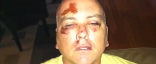 "Man brutally attacked after leaving Ybor's Bradley's on 7th: ""Always have someone with you"""