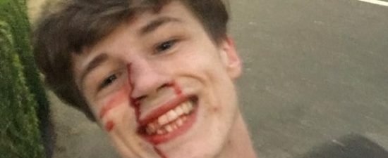 Smiling Facebook post following homophobic attack goes viral